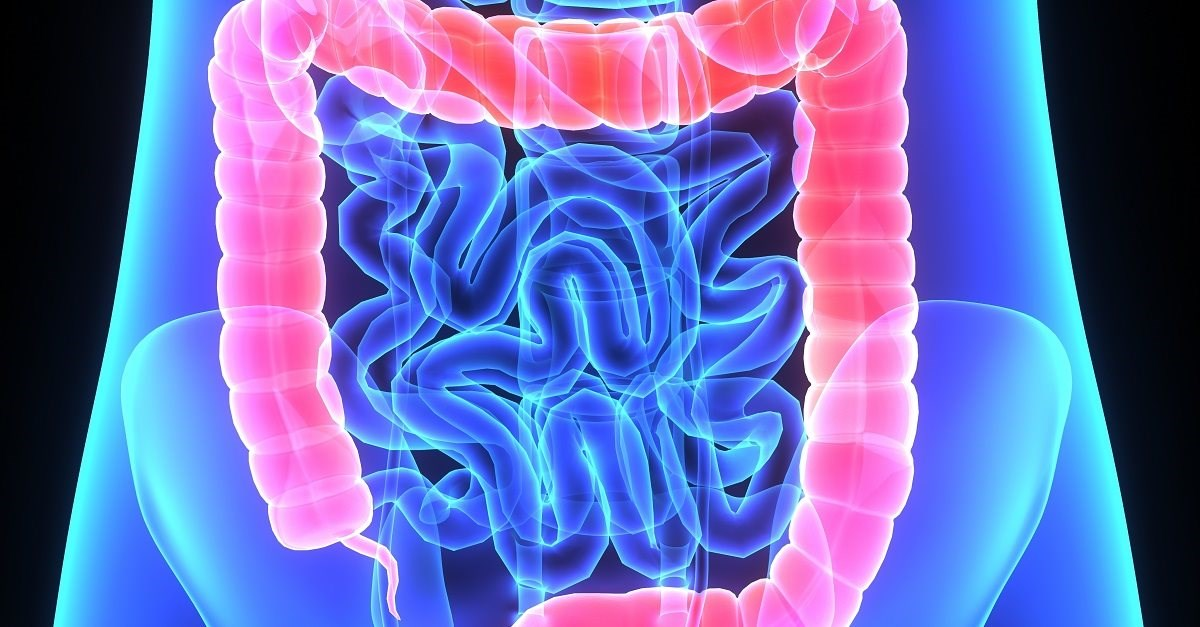 Irritable Bowel Syndrome: How to Deal with It Naturally